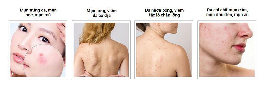 doi-tuong-su-dung-skin-fresh