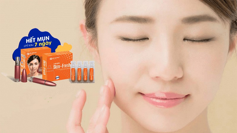 fresh-skin- điều-trị -mụn